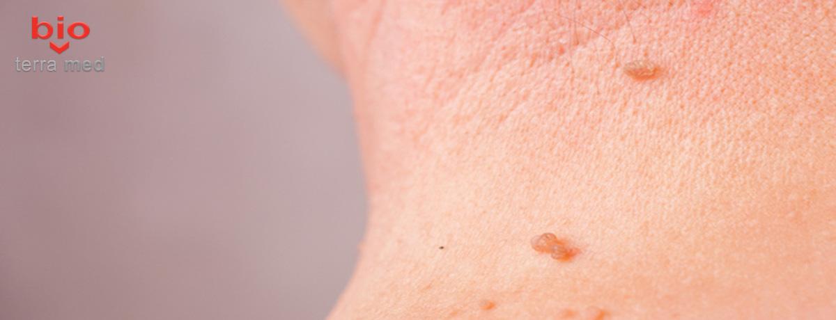 Papiloamele cutanate (negi pediculati) - ce sunt, cum arata si ce tratamente exista