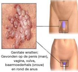 hpv virus behandeling