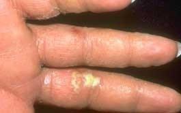 Cum trebuie să ne spălăm pe mâini? De ce 20 de secunde? | Clinica Medicum