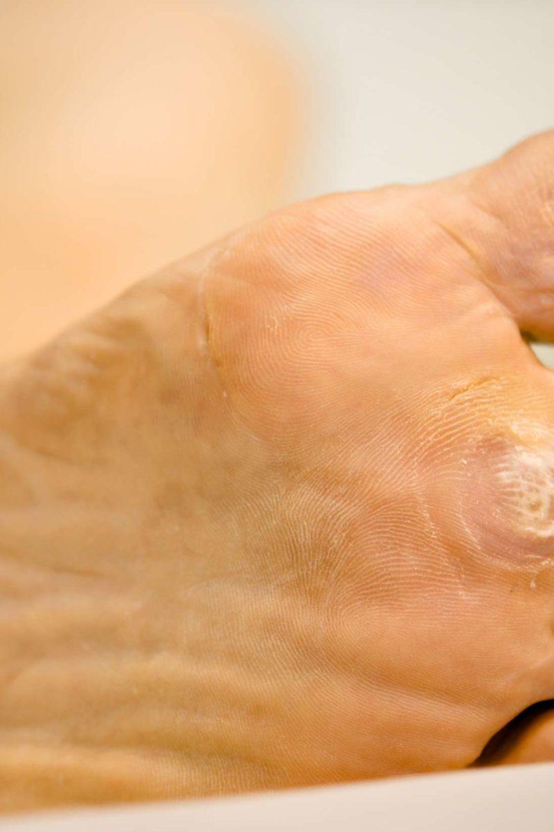 warts skin feet