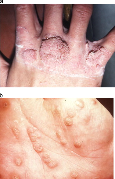 hpv and skin disorders