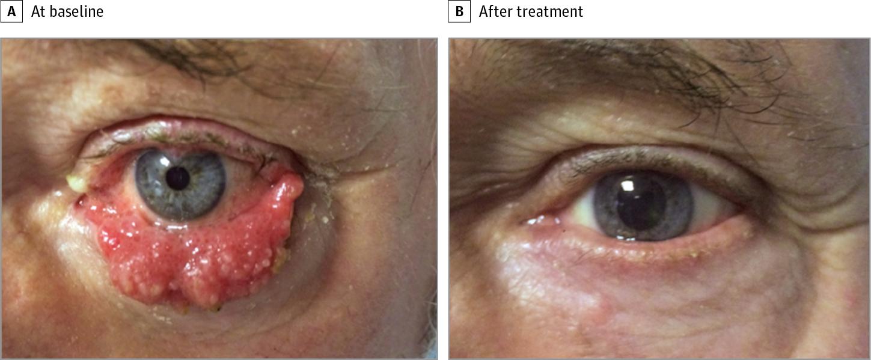Intraductal papilloma malignant transformation