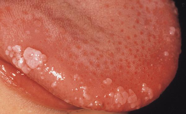hpv virus lecenje a face să dispară verucile