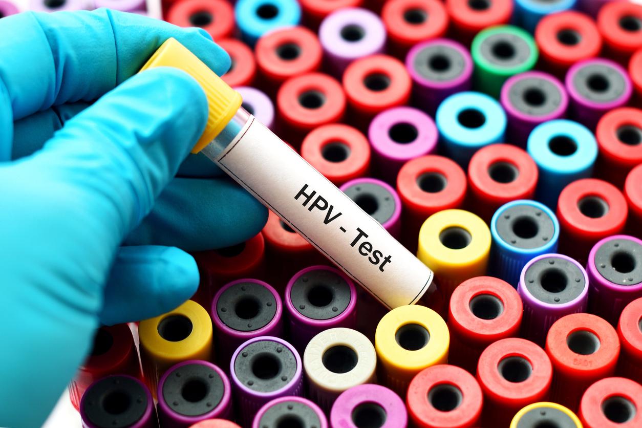 tratament alergic helminth este posibilă tratarea condiloamelor