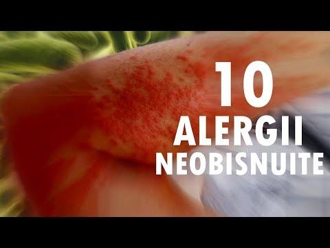 plante medicinale pentru curatarea vaselor de sange
