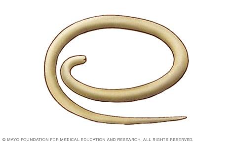 Tratamiento para parasitos oxiuros