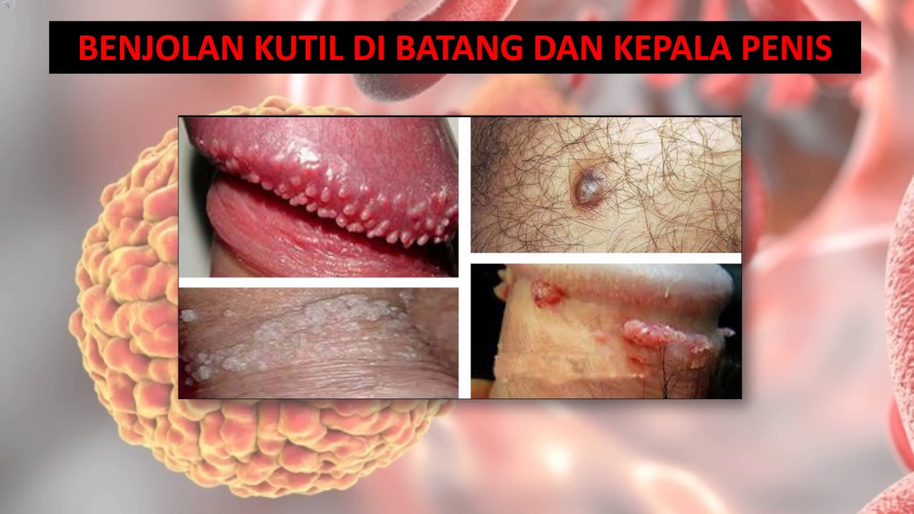 medicamente cu viermi la adulți human papillomavirus hpv who