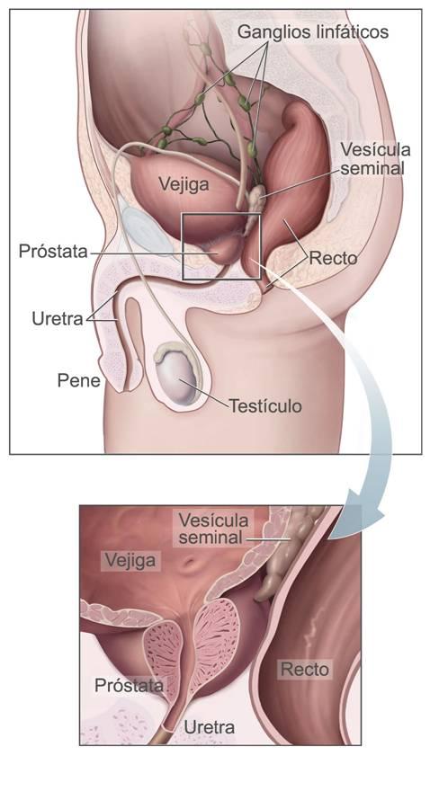 Cancer de prostata hombres jovenes.
