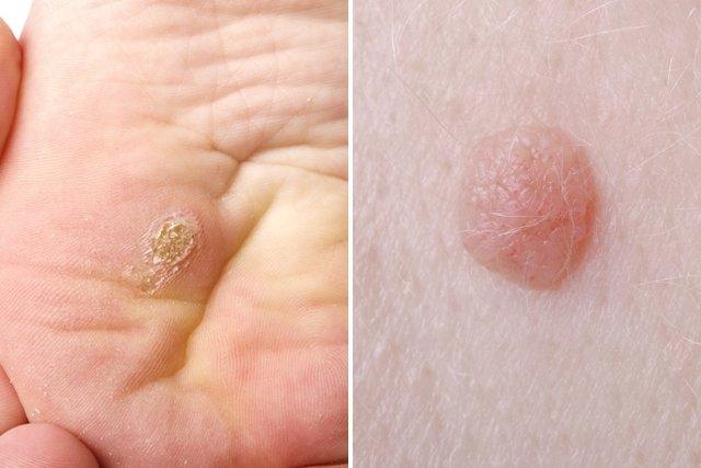 Papiloma( hpv sintomas