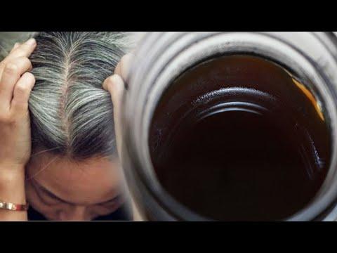 Tratament helmint pentru ochi - Tratament preventiv pentru helmint ,opisthorchiasis-lichenie