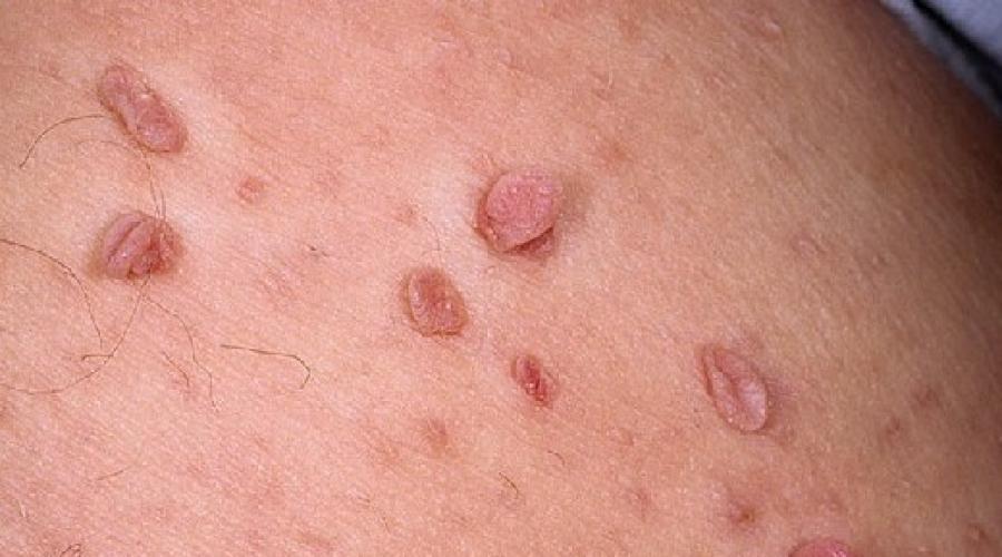 schistosomiasis racgp