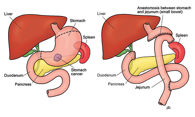 Abdominal cancer uk