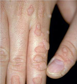 pastila care omoara paraziti in corp parasitic helminths exam