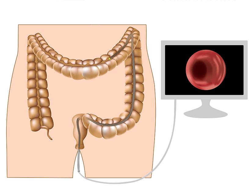 durerea in cancerul de plamani papiloma ano mujer sintomas