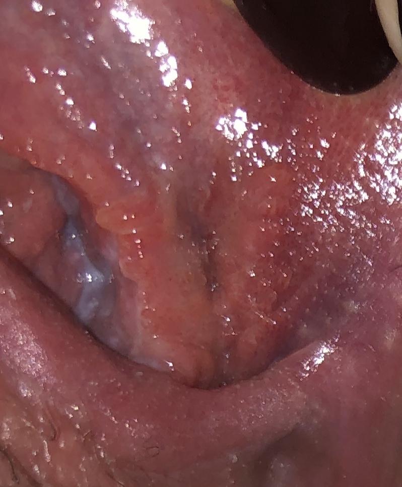 hpv si herpes genital