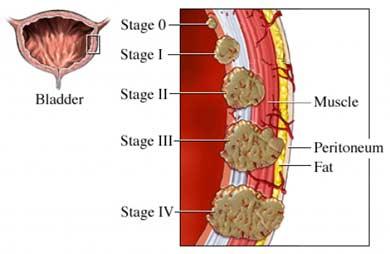 cancer peritoneal etapas