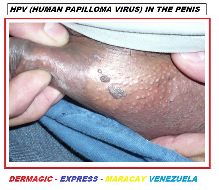 lumânări din verucile genitale metode de curățare a intestinelor de paraziți