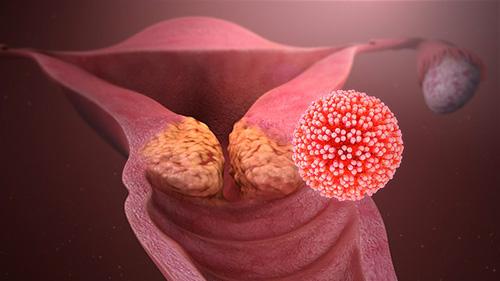Papilloma virus rapporti non protetti, HPV (Human Papilloma Virus) afectează sarcina și nașterea?
