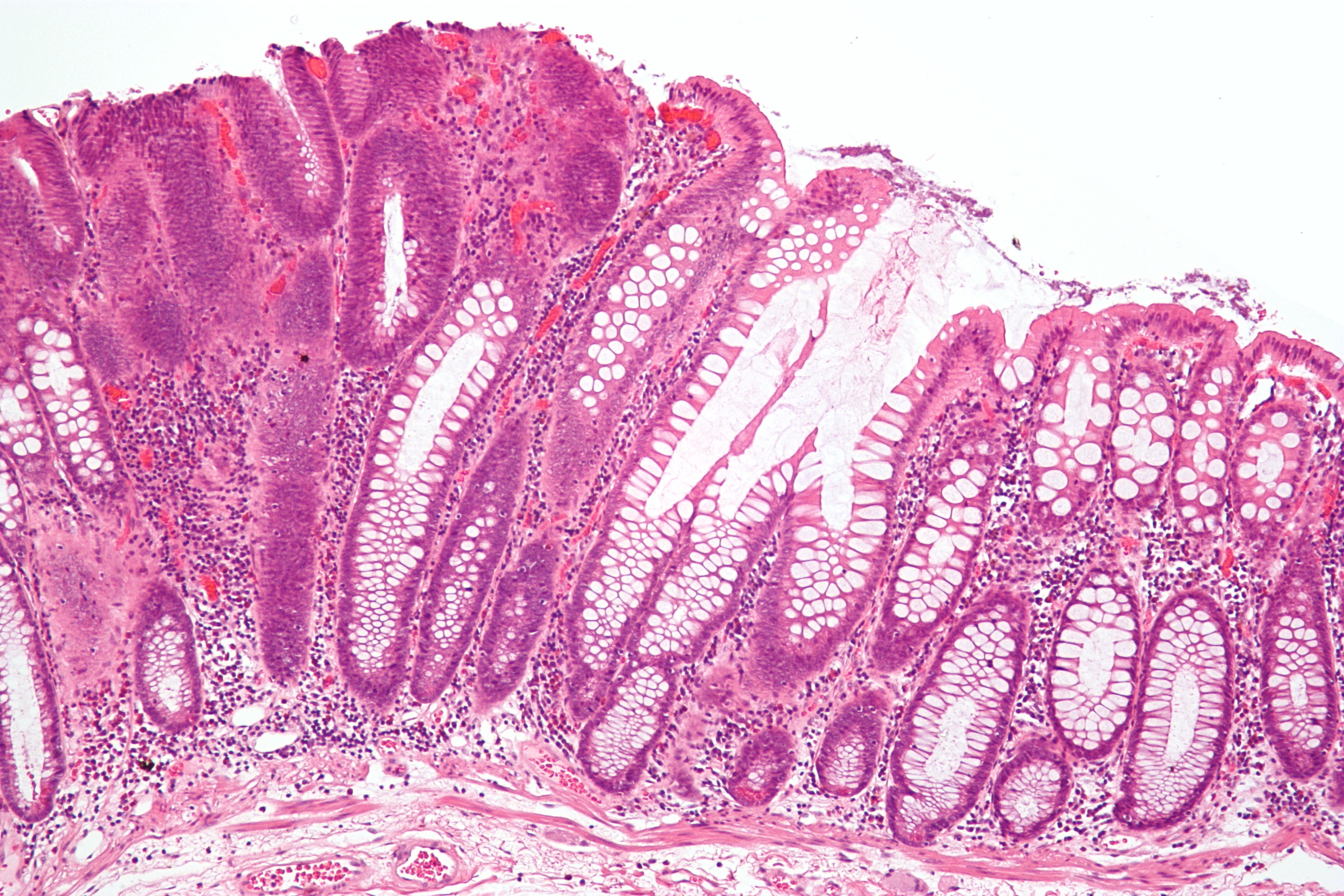 Inverted papilloma nasal polyp