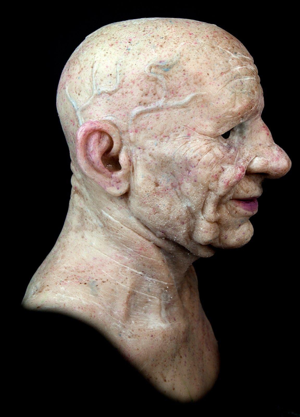 Warts on old skin. Îndepărtarea de Tag-uri pielii - Fibroepithelial papilloma polyp