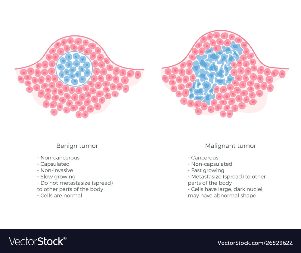 cancer and benign tumour