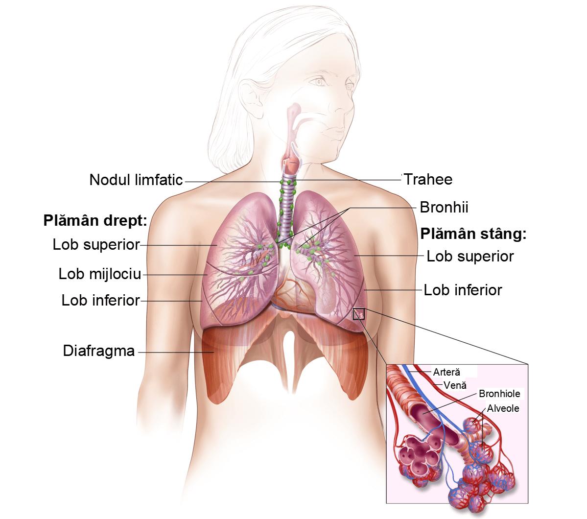 Cancerul sistemului respirator