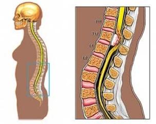 simptomele infecției giardiei la adulți