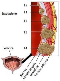 Papilloma alla vescica uomo, Sinonimele și antonimele vescicale în dicționarul de sinonime Italiană