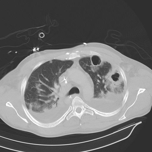 parazit lung urologue papillomavirus chez l homme