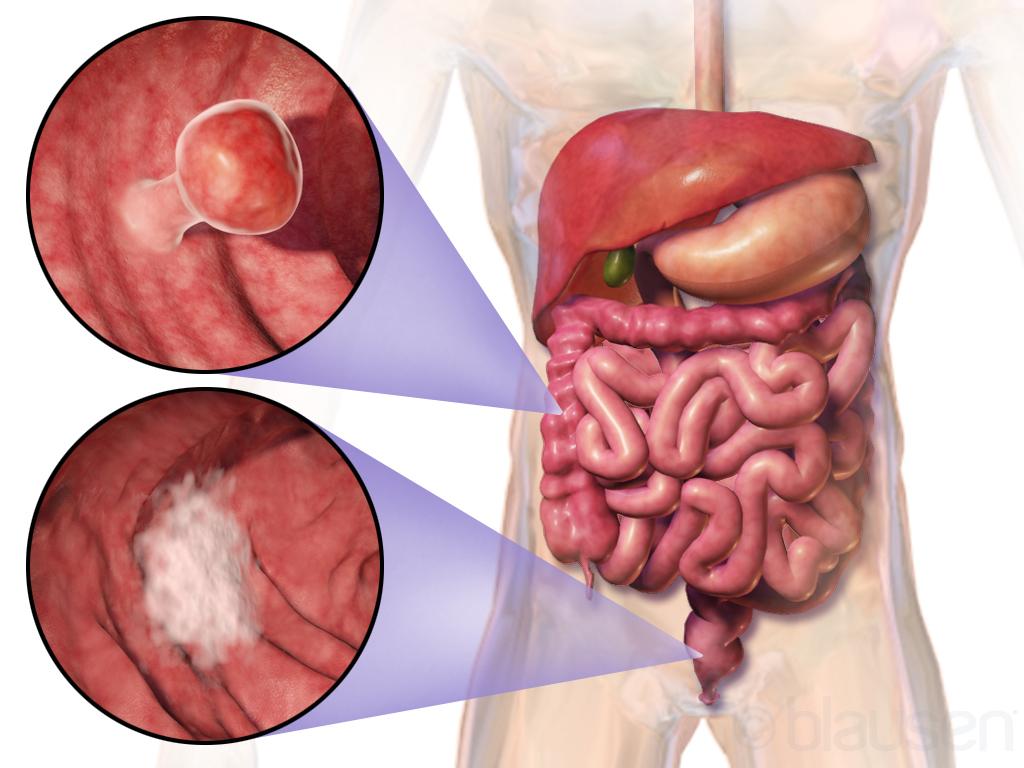 Simptome ale cancerului colo-rectal