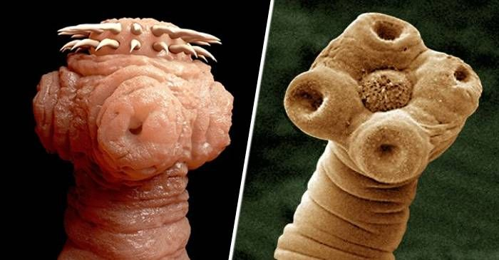 ce viermi sunt la oameni antihelmintic pentru copiii de un an