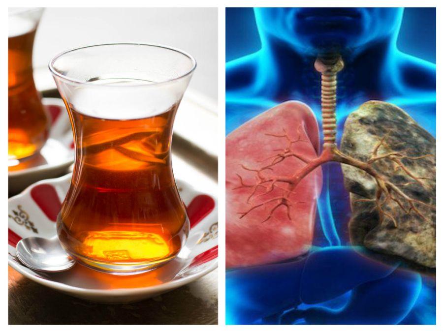 Pneumonie - Wikipedia