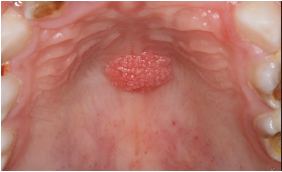 hpv cause of throat cancer