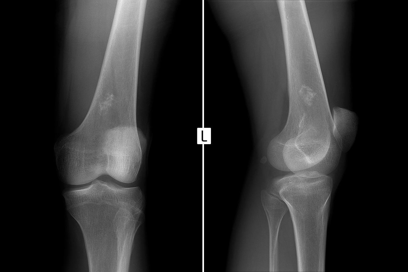 Operaţiile dificile pentru tumorile osoase sunt aplicate cu succes