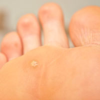 Warts on foot causes Do warts on foot itch