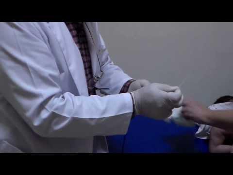 tratarea perlelor de panglică la om tablete cu vierme helmizole