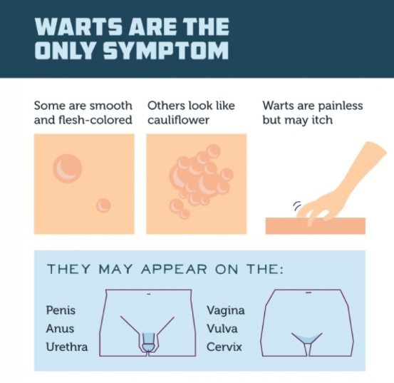 hpv warts causes tratamentul papilomelor laringiene