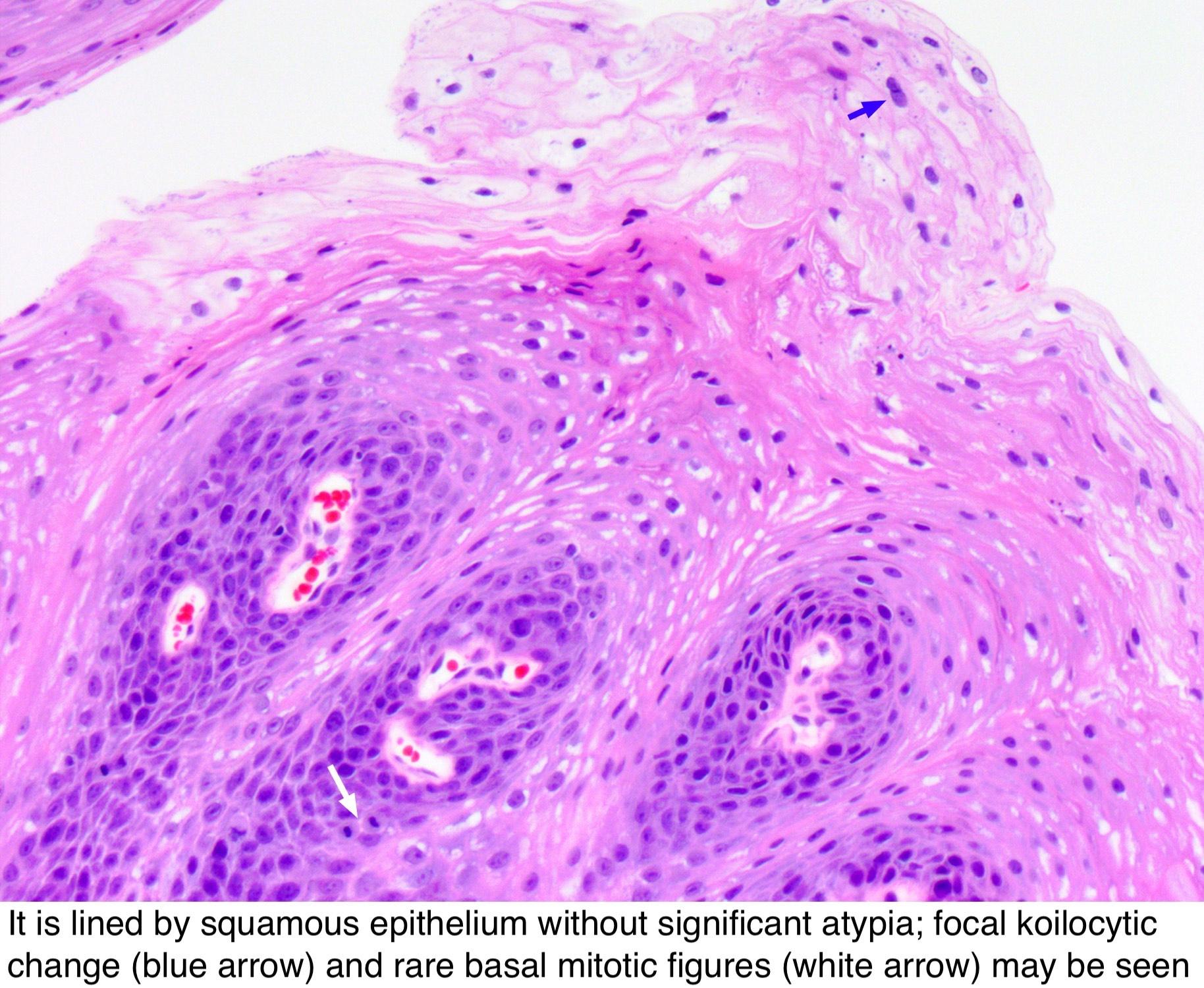 Esophagus papilloma pathology outlines. neoplasia 1 squamous papilloma medicamento de oxiuros