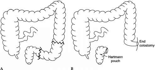 Choroid plexus papilloma medscape. O que é um Papanicolau anormal ? oxiuri in timpul sarcinii