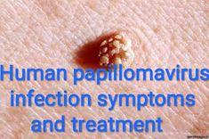 căști, cum funcționează papillomavirus hond besmettelijk