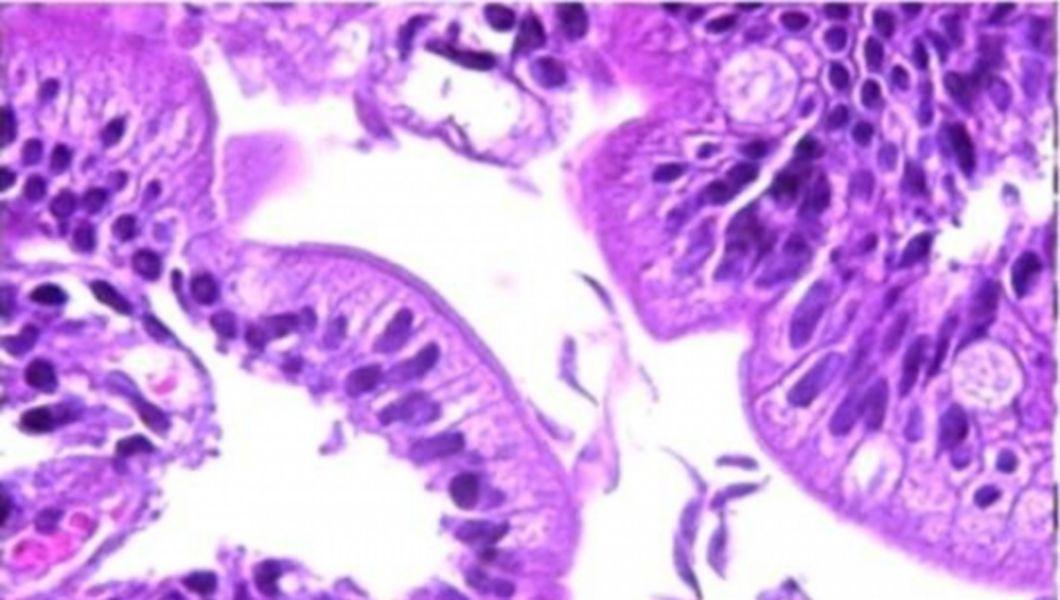 enterobioza negativă ce înseamnă asta cum se tratează verucile genitale la bărbați