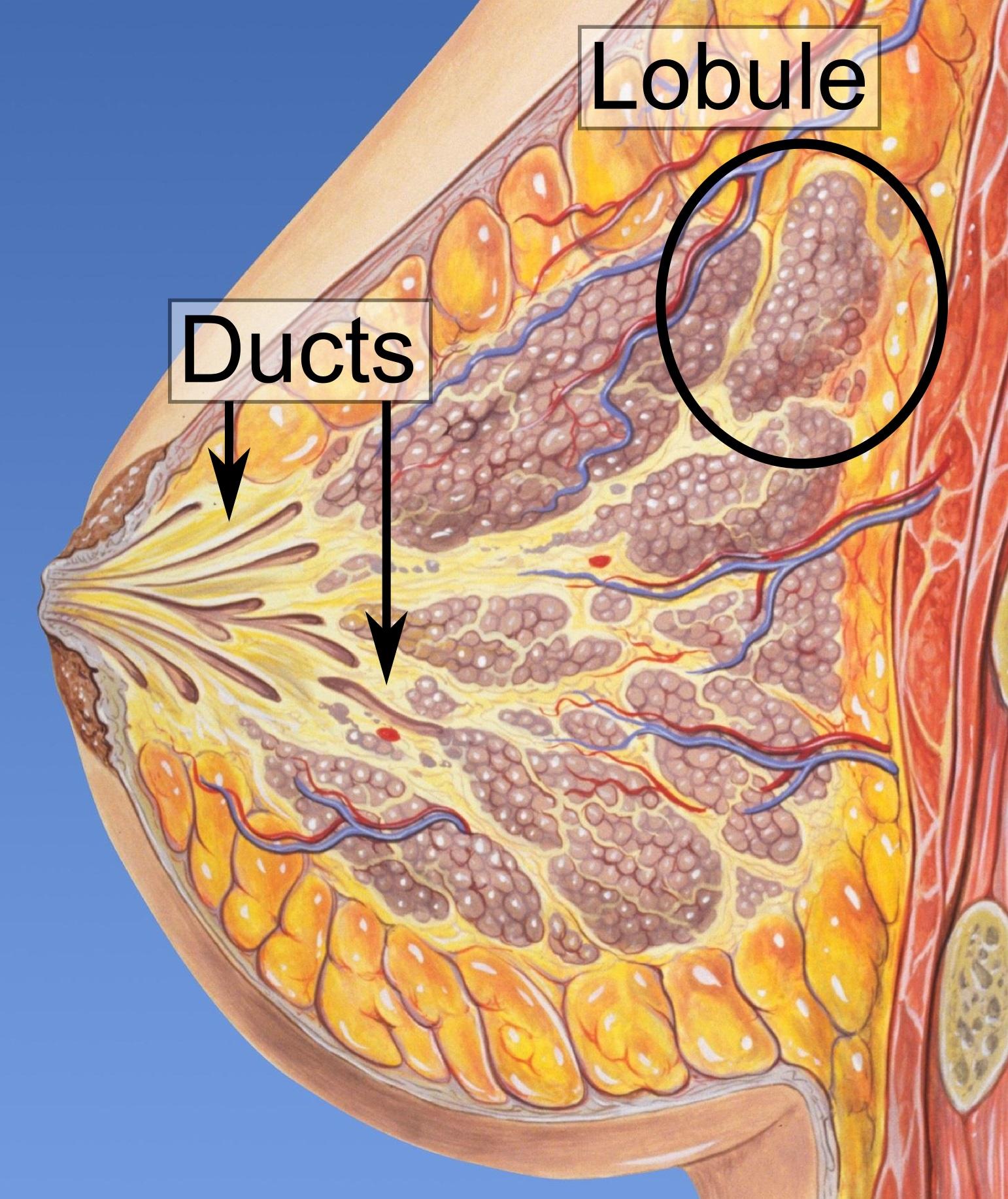 Kode icd 10 papillomatosis, Icd 10 code for papilloma right breast