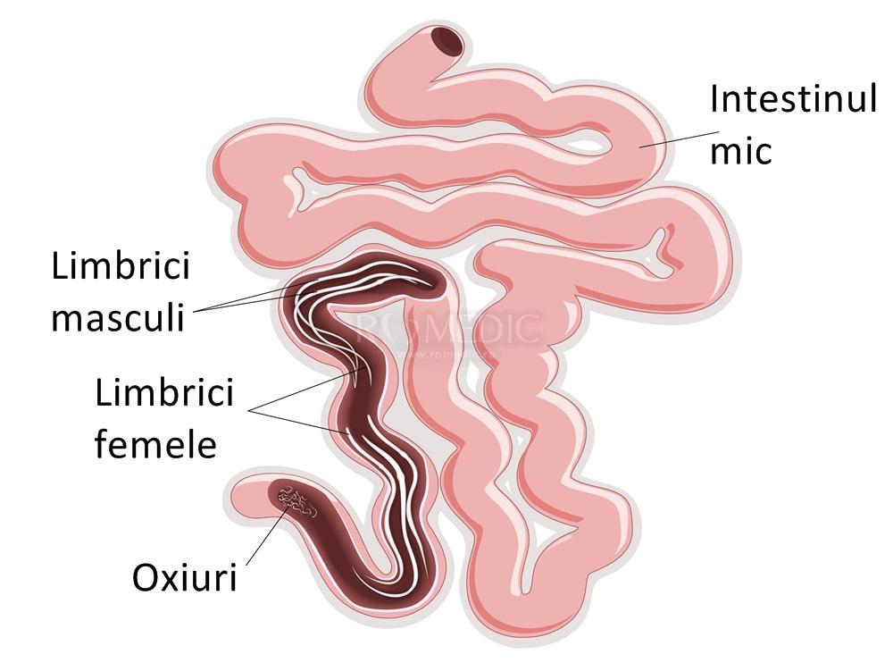 simptomele și tratamentul paraziților pulmonari