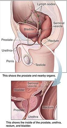 cancerul de prostata prognostic parazitii unde ai fost ce ai facut