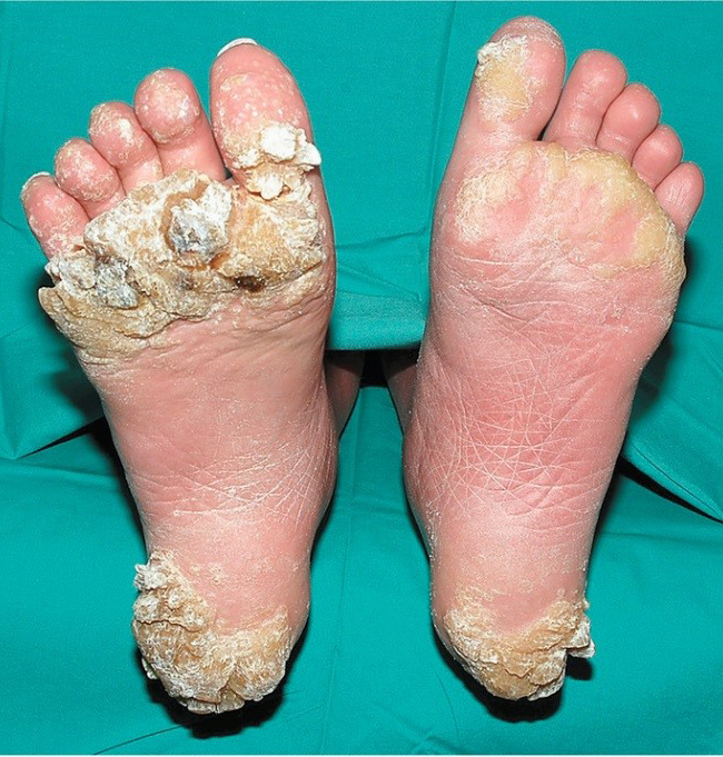 Wart on foot sole - pcmaster.ro, Hpv wart feet