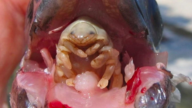 paraziti lidske telo