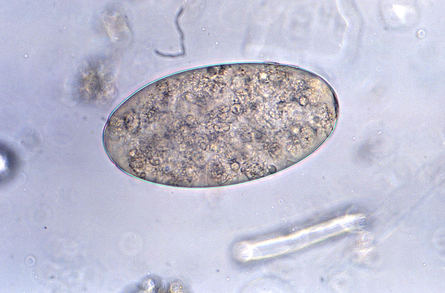 parazit lung cum să eliminați papilomul în nas