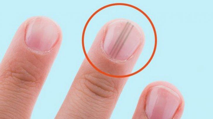 cancer la unghie