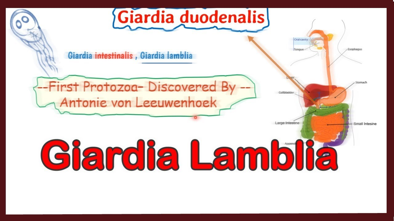 Parazitozele intestinale: giardioza si ascaridioza | pcmaster.ro