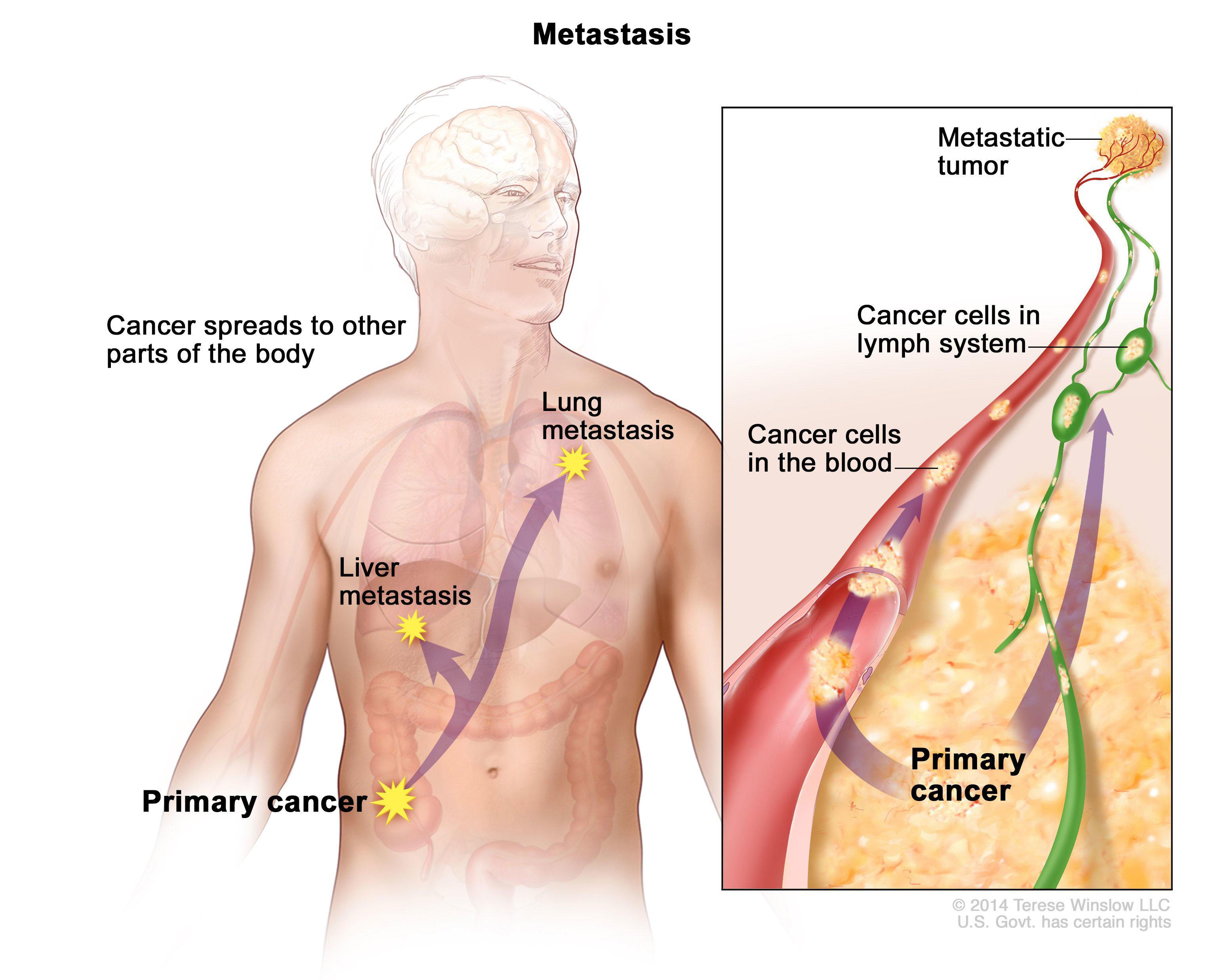 cancer metastatic or